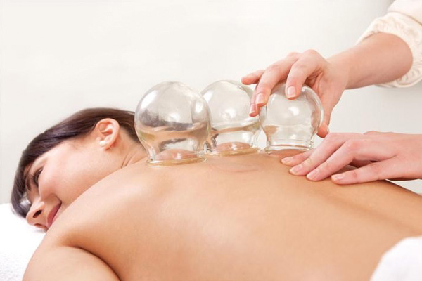Myofascial Cupping Therapy Perth