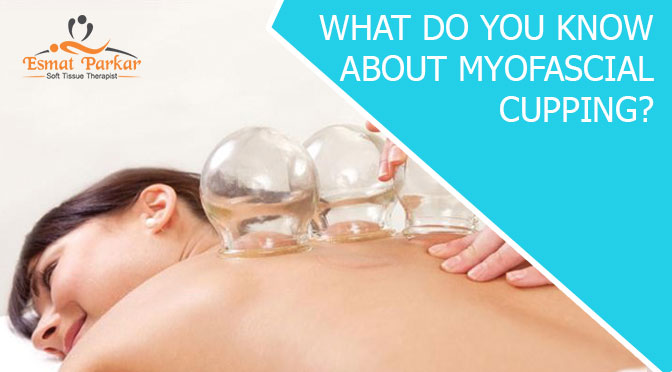 WHAT DO YOU KNOW ABOUT MYOFASCIAL CUPPING?