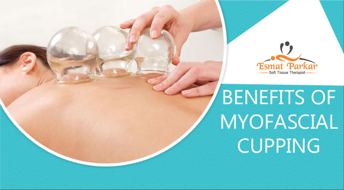 BENEFITS OF MYOFASCIAL CUPPING