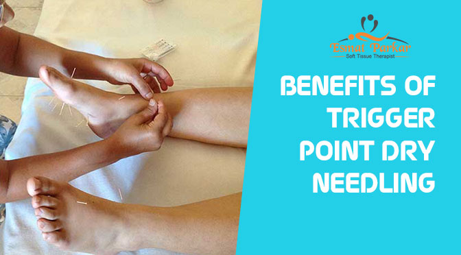 BENEFITS OF TRIGGER POINT DRY NEEDLING